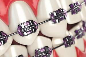Teeth_with_braces_or_brackets_in_open_human_mouth._Dental_care_concept._3d_illustration